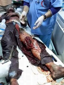 ضحايا يماني3