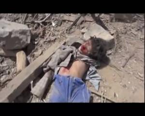 مجزرة العدوان السعودي الأمريكي -وادي المغسل -  مديرية المجز - محافظة صعدة  (11)